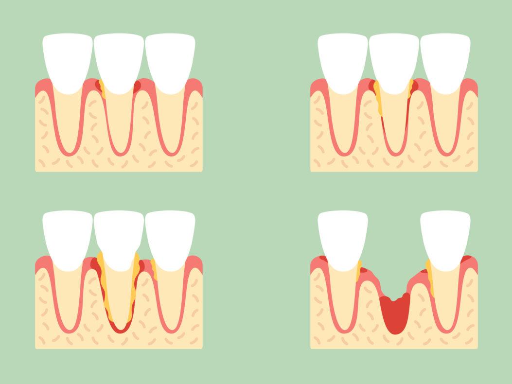 illustration depicting stages of gum disease